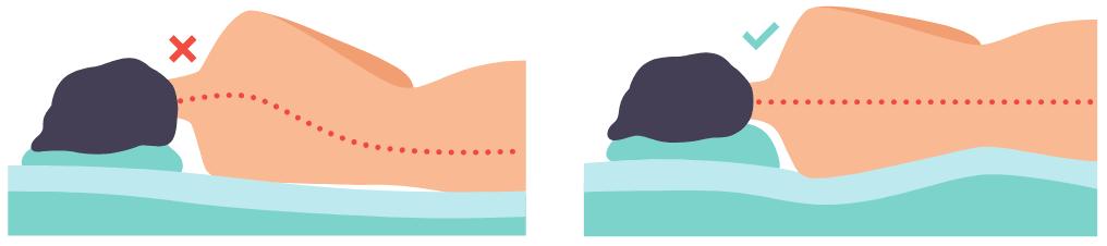 Folgen eines falschen Matratzen Härtegrades bzw. einer zu weichen Matratze - schiefe Wirbeksäule